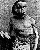 John Merrick was known as The Elephant Man.